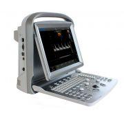 Ecografo Color-Doppler portatile CHISON ECO5 (senza sonda)