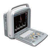 Ecografo Color-Doppler portatile CHISON Q9 (senza sonde)
